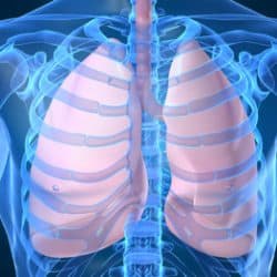 Lung image.